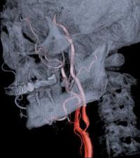 Stenóza krkavice na angiografii